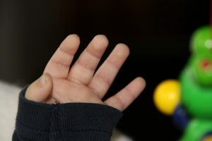 מגני אצבעות