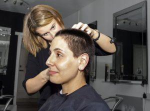 השתלות שיער לנשים