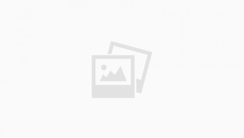 בוטוקס – חברה הנאמן של האישה