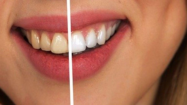 ניקוי אבנית בשיניים – לחיוך מושלם!
